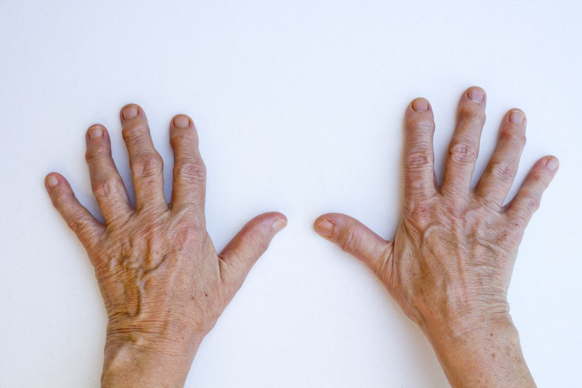 Don't Let Arthritis Keep